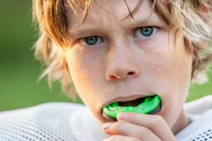 Under Armour Performance Mouthguards